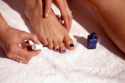 Лечение грибка ногтей с помощью лака