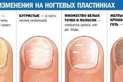Изменения на ногтевых пластинах