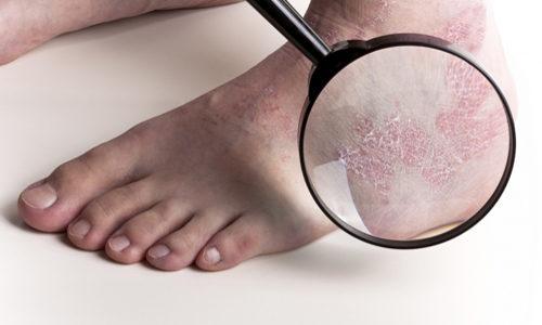 Грибковые заболевания стопы и ногтей