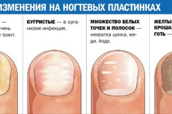 Причины изменений на ногтевых пластинах