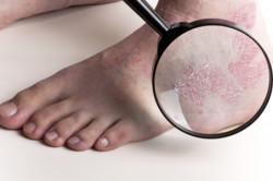 Грибковые заболевания стоп