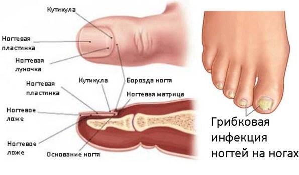 Уксусная кислота от грибка ногтей на ногах отзывы